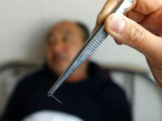 La hernia sheynogo del departamento de la columna vertebral fizioprotsedury