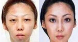 La ex señora Feng, antes y después de sus operaciones de estética. (ideasynoticias.com)