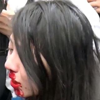 Ng Lai-Ying, tras la carga policial.