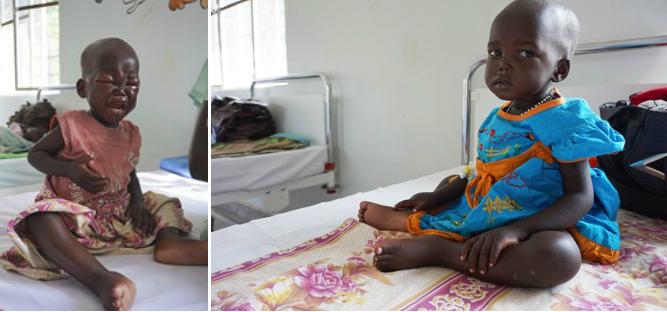 El antes y el después de la pequeña María. (UNICEF/SOUTH SUDAN/ JAMES ELRINGTON).