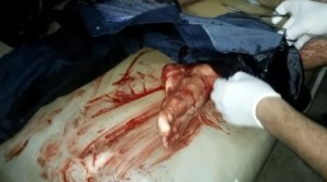 Un paciente herido es atendido en un hospital de campaña improvisado en el norte de Homs. MSF