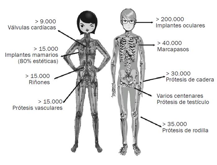 Implantes y cuerpo