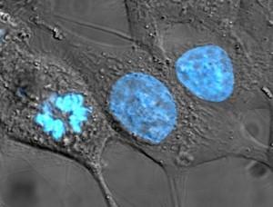 Muestra de células HeLa teñidas / Wikipedia