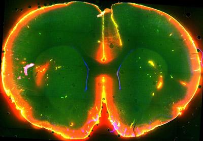 Mientras el ratón duerme, el tinte fluorescente lava su cerebro, lo que no ocurre cuando el animal está despierto. Nedergaard Lab, University of Rochester Medical Center.