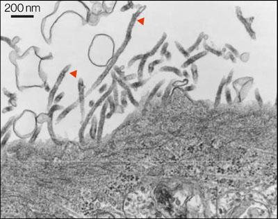 Una célula en cultivo produce partículas similares a filovirus con la proteína GP del virus de Lloviu en su superficie. Imagen de Ng et al., Virology.