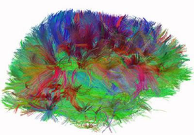 Imagen de las fibras y conexiones neuronales en un cerebro humano. Imagen de NIH.