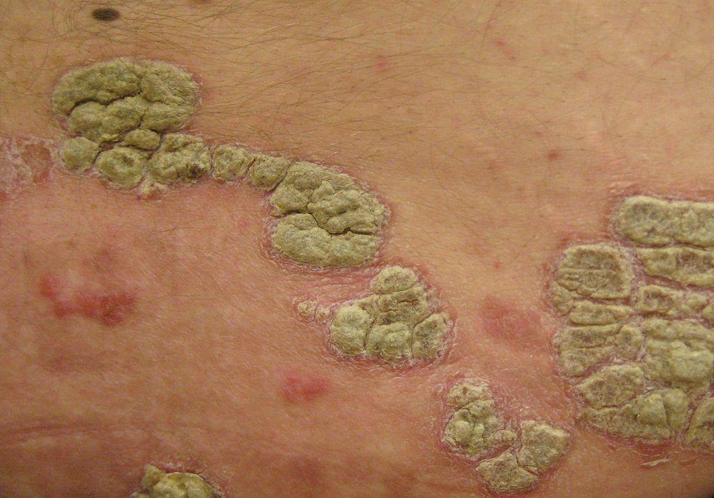 Chino meditsina.lechenie de la psoriasis por los ungüentos