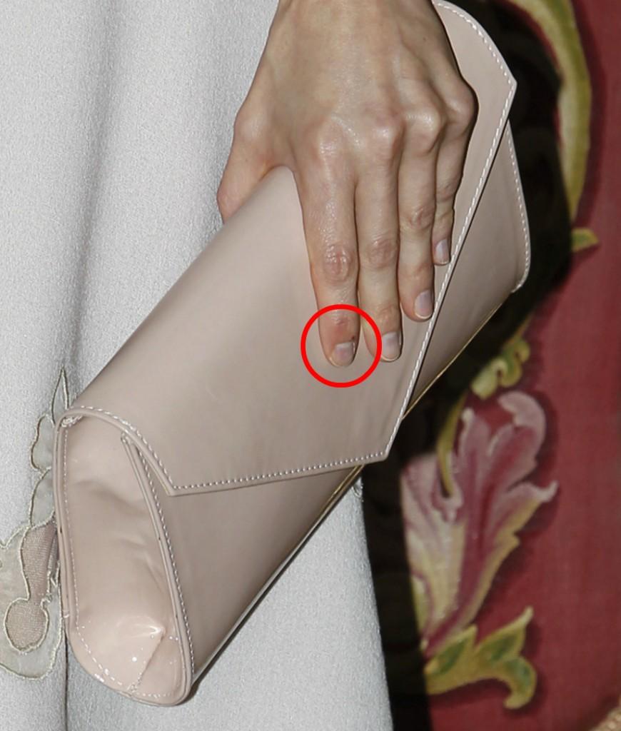 Detalle de un dedo mordisqueado de Letizia (GTRES)
