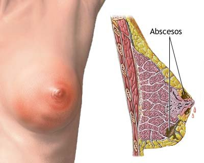 Las hormonas del aumento del pecho