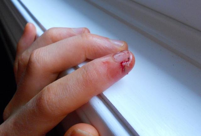 dedos sangre