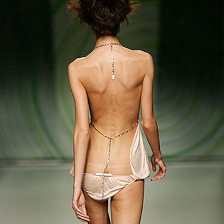 Dolor de espalda y como sanarla Modelo-anorexia