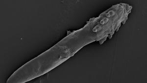 Un 'Demodex folliculorum'. Imagen de California Academy of Sciences.