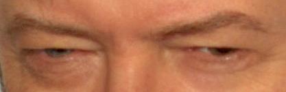 Los ojos de Bowie en una foto de 2009. Recorte de una imagen de Wikipedia.