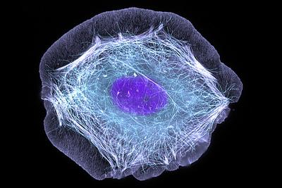 Una célula de piel humana (queratinocito). Imagen de Torsten Wittmann, University of California, San Francisco / Flickr / CC.
