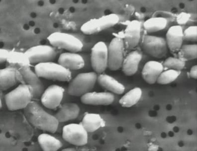 Bacterias GFAJ-1. Imagen de Wikipedia.