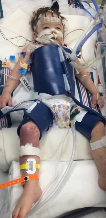 Eden Carlson, después de su reanimación. Imagen de YouTube.