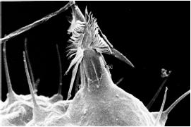 Un nematocito disparado, observado con microscopio electrónico. Imagen de Wikipedia.