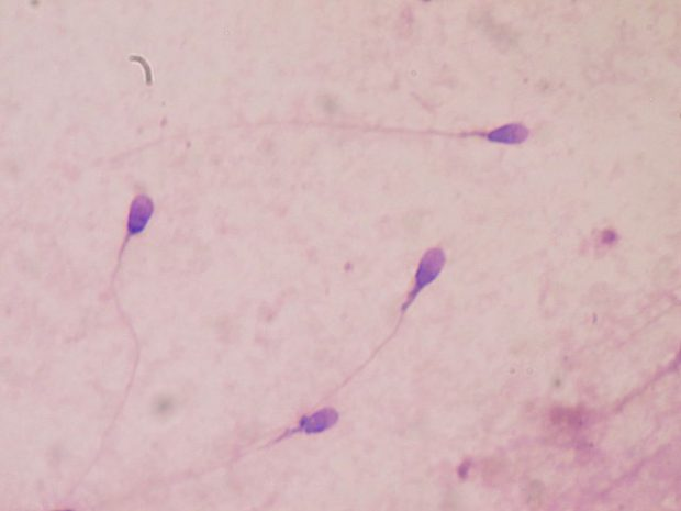 ESpermatozoides teñidos para un estudio de la calidad del semen. Imagen de Bobjgalindo / Wikipedia.