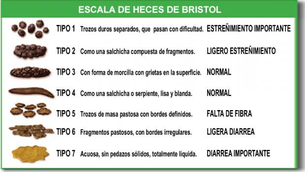 Escala de Heces de Bristol. Imagen de Cabot Health / Wikipedia.