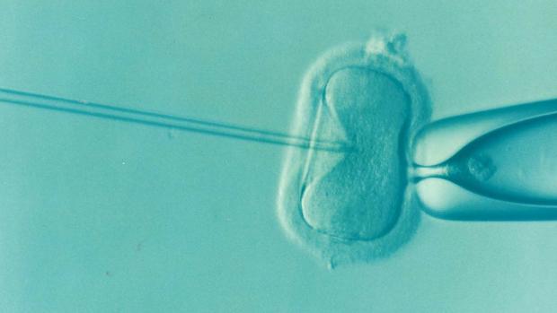Fecundación in vitro. Imagen de pixabay.