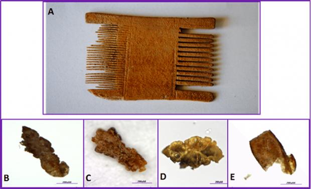 Arriba, una liendrera de la época romana (unos 2.000 años atrás) hallada en Israel. Abajo, restos de piojos (B, C y D) y de una liendre (E) hallados en la liendrera. Imagen de Amanzougaghene et al / PLOS One / CC.