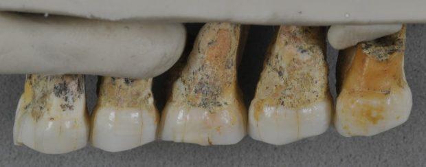 Dientes del Homo luzonensis. Imagen de Callao Cave Archaeology Project (Florent Détroit).