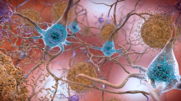 Ilustración de anomalías neuronales en el alzhéimer: placas beta-amiloides (marrón) y ovillos neurofibrilares (azul). Imagen de NIH.
