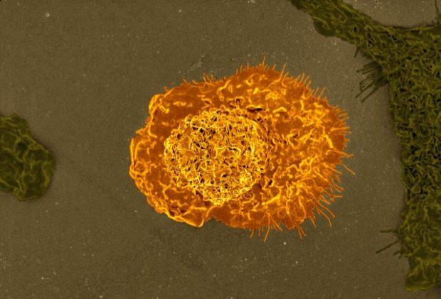 Imagen al microscopio eléctronico de barrido y coloreada de un macrófago. Imagen de NIAID / Flickr / CC.