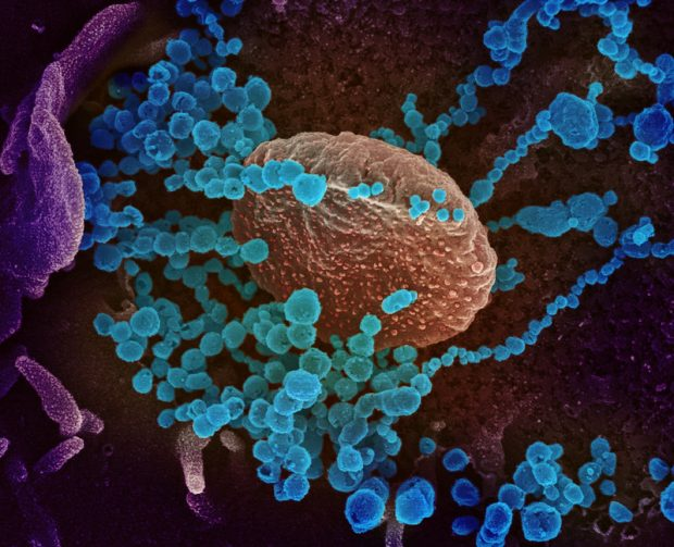 Imagen coloreada de microscopía electrónica que muestra el coronavirus SARS-CoV-2 de la COVID-19 (en azul) emergiendo de células en cultivo. Imagen de NIAID-RML / Dominio público.