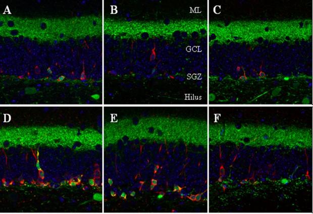 Proceso de formación de neuronas en un cerebro de ratón adulto