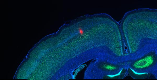 Corteza cerebral rata adolescente