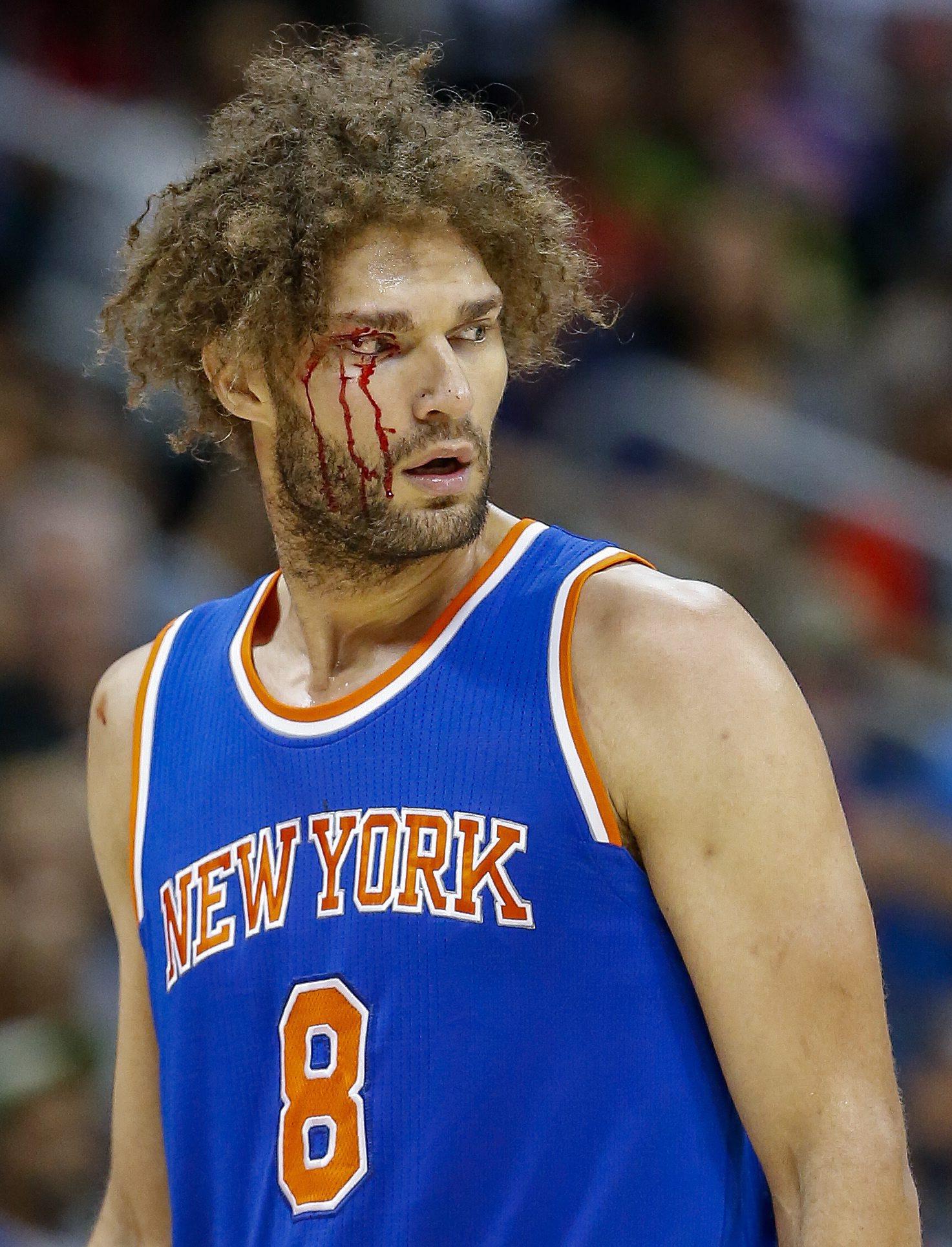 Robin Lopez, sangrando profusamente por su ceja derecha (EFE).