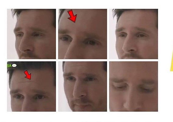 Elevación central de las cejas como gesto propio de la emoción de tristeza / Montaje fotográfico realizado por Alan Crawley