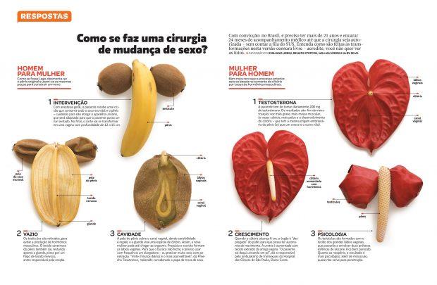 (Cirugías de cambio de sexo. Emiliano Urbim, Renata Steffen, Willian Vieira e Alex Silva. Revista Superinteressante)