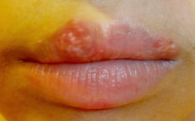 口唇单纯疱疹