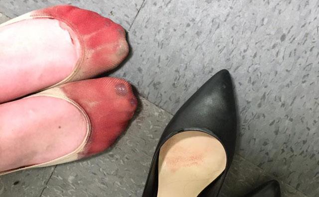 pies_sangrep
