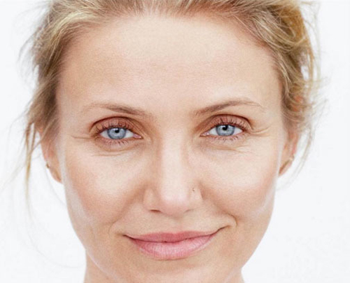Los hinchazones bajo los ojos por la intermitencia hormónica