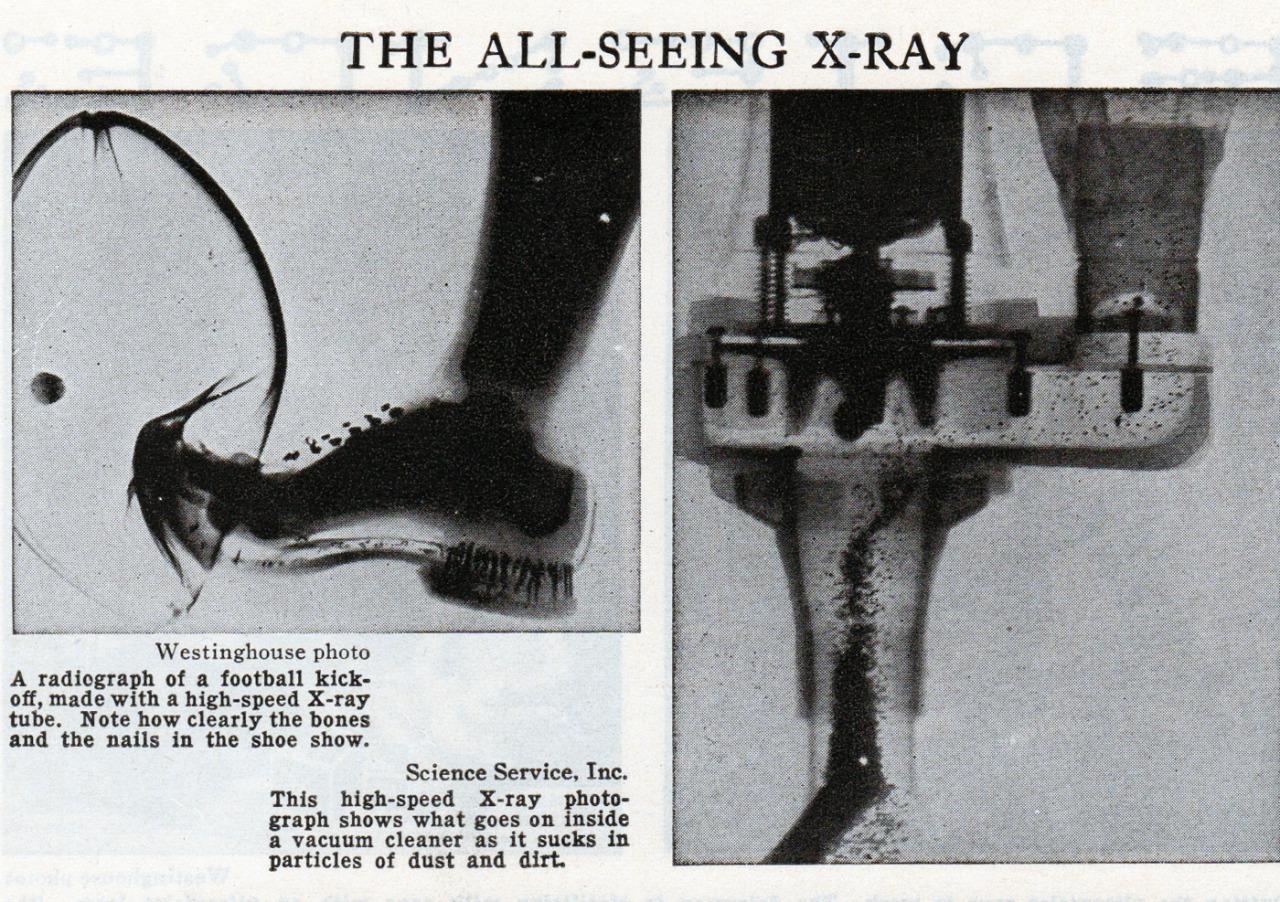 'The All-seeing X-ray' ('Los rayos equis que todo lo ven') - Cutaway World