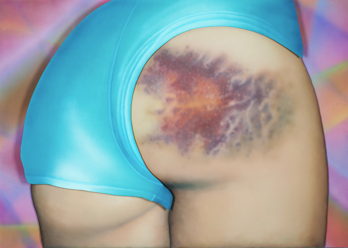 'I Got a Really Beautiful Bruise on My Bum, Do You Want To See a Pic? It Has 12 Colours And Is the Size of My Head!' (2015) - Riikka Hyvönen