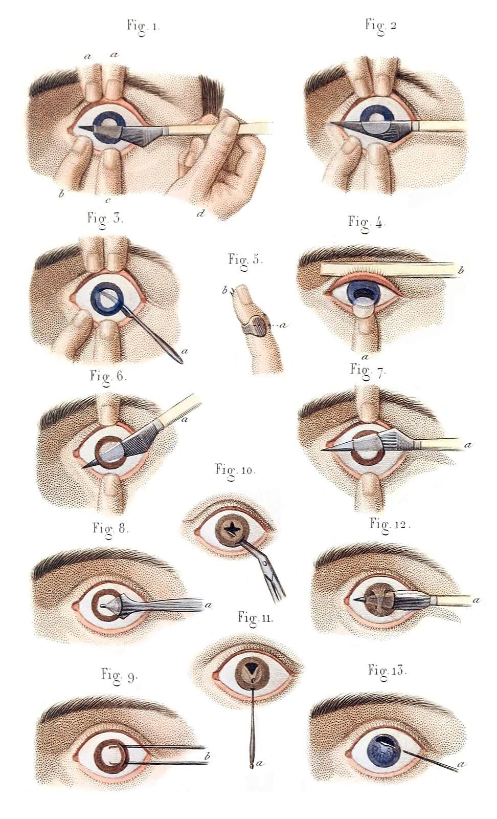 Grabado de Jean-Baptiste Léveillé que ilustra una operación de cataratas en el siglo XIX