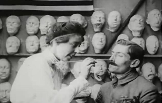 Fotograma del vídeo 'Plastic Recostruction of Face' (1918)