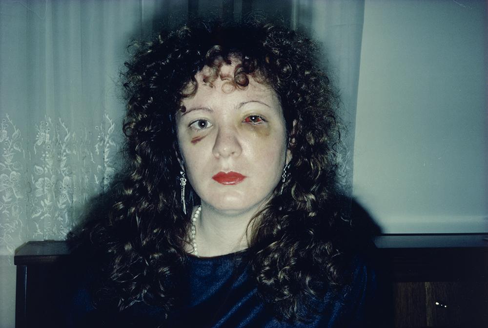 Nan Golding - Nan One Month After Being Battered. 1984. The Museum of Modern Art, New York © 2016 Nan Goldin