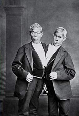 ¿Por qué se llaman 'siameses' los gemelos que nacen unidos?