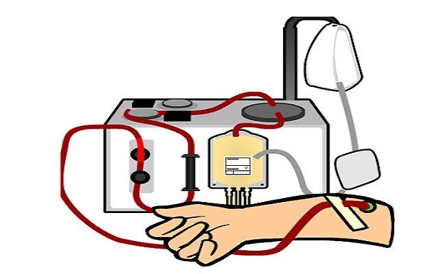 ¿Qué es la donación de sangre por 'aféresis'?