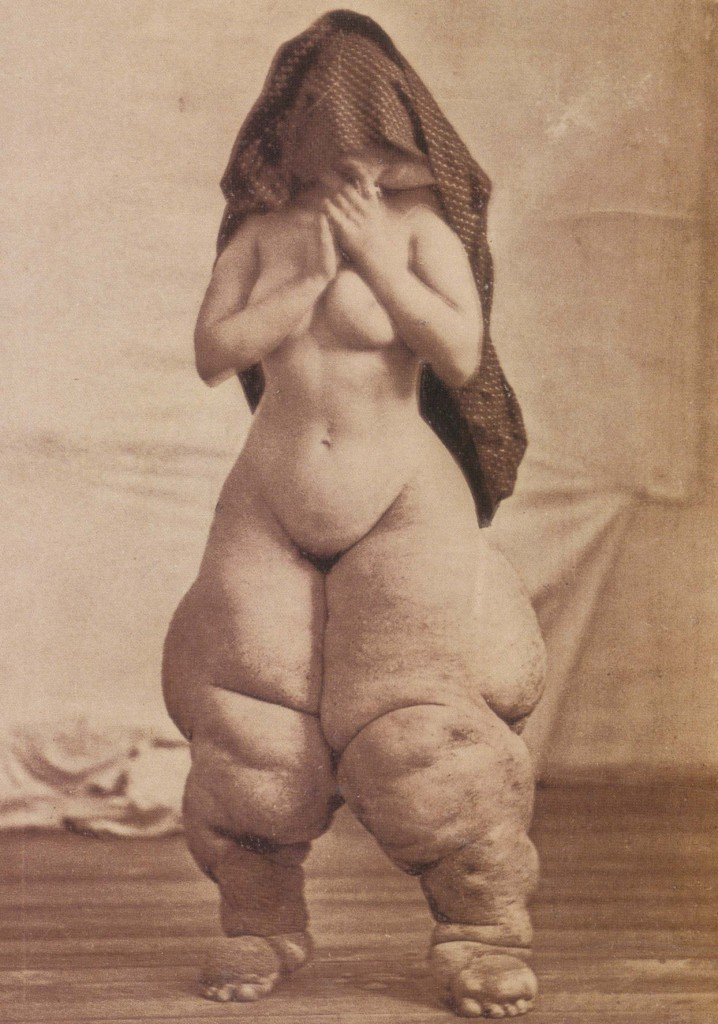"""""""Mujer joven con elefantiasis"""" (EE UU, 1878)"""