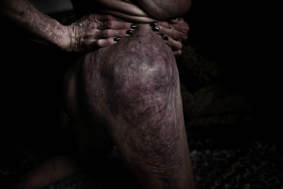 """Edoardo Pasero - de """"Doll Flesh"""""""