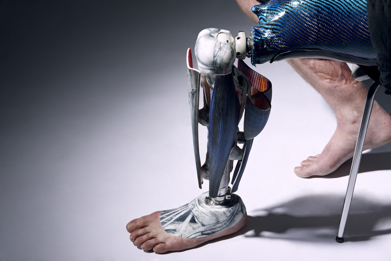 Prótesis para Ryan Seary - 'The Alternative Limb Project'