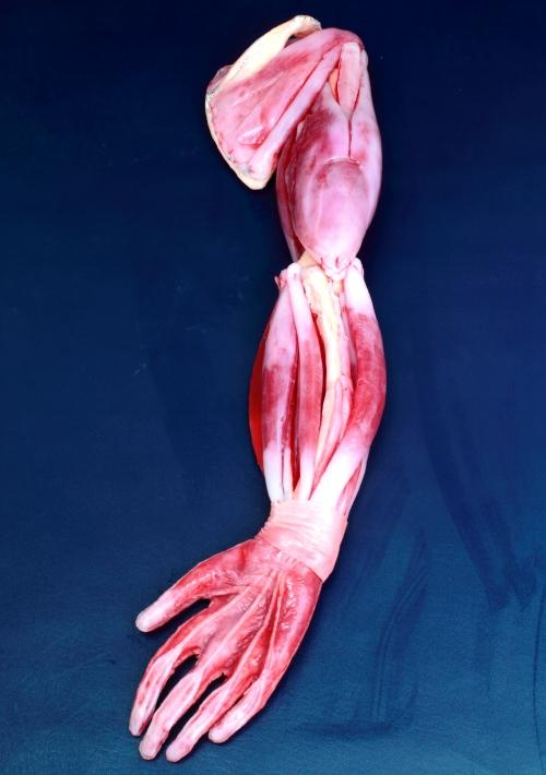 SynDaver-pic-arm