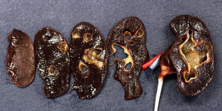 SynDaver-pic-kidney
