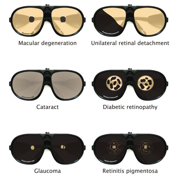 Gafas diseñadas por Wolfgang Moll que simulan diferentes deterioros y enfermedades de la vista asociados con la edad